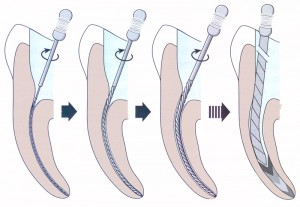 Wurzelkanalaufbereitung Detail