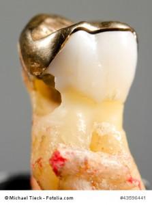 toter Zahn