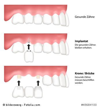 Zahnimplantatbrücke