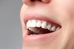 Weiße gesunde Zähne