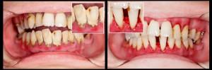 Vor und nach der Zahnfleischbehandlung