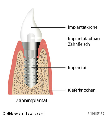 implantatkrone