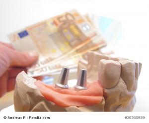 Zahnimplantate Kosten