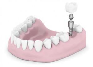 Modell Zahnimplantat