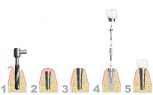 Vorgehensweise Zahnimplantation