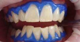 Laser bei Zahnaufhellung